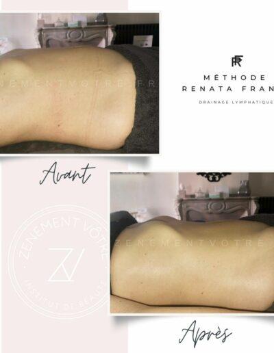 Avant/Après résultats drainage lymphatique Renata França